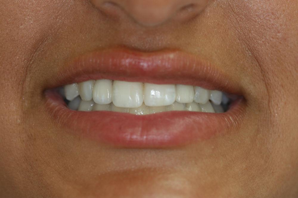 colts neck NJ dental implants