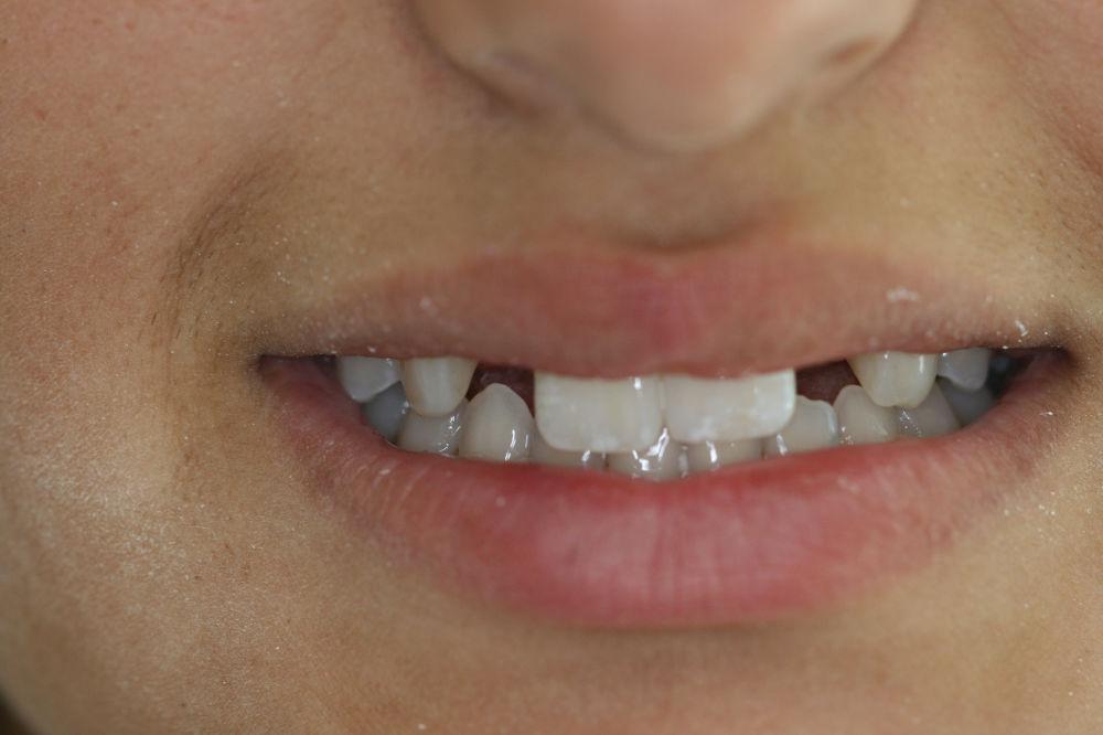 implant dentist colts neck nj