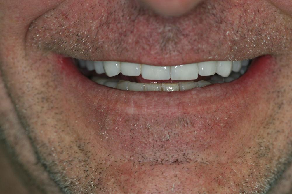 Colts Neck NJ Top dentist