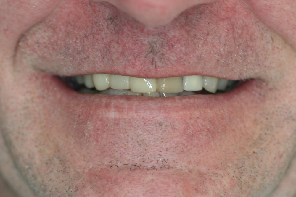 best colts neck dentist