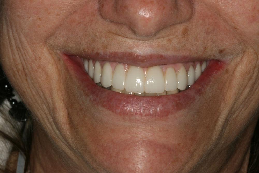 cosmetic dentist colts neck nj