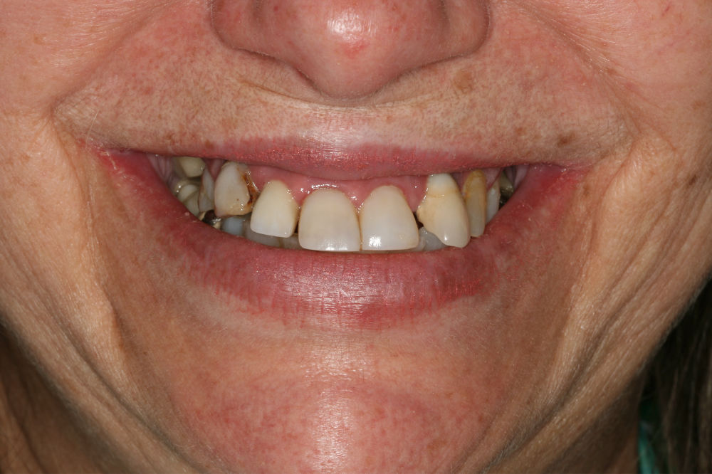colts neck NJ cosmetic dentist